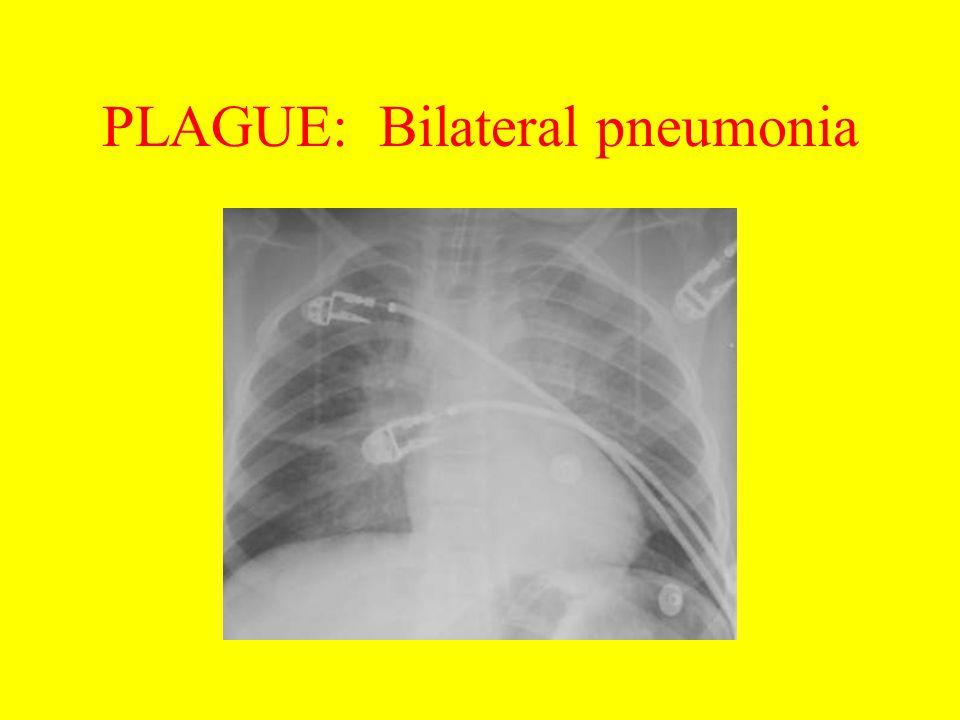 PLAGUE: Bilateral pneumonia