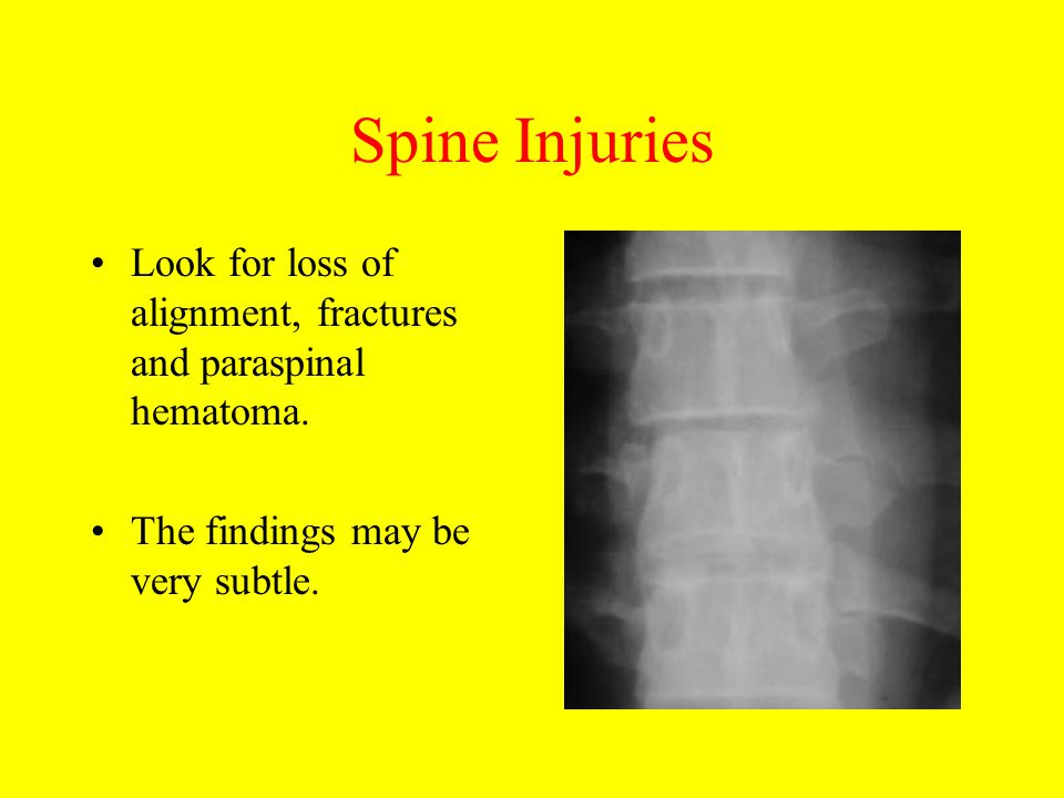 Spine Injuries Look for loss of alignment, fractures and paraspinal hematoma.