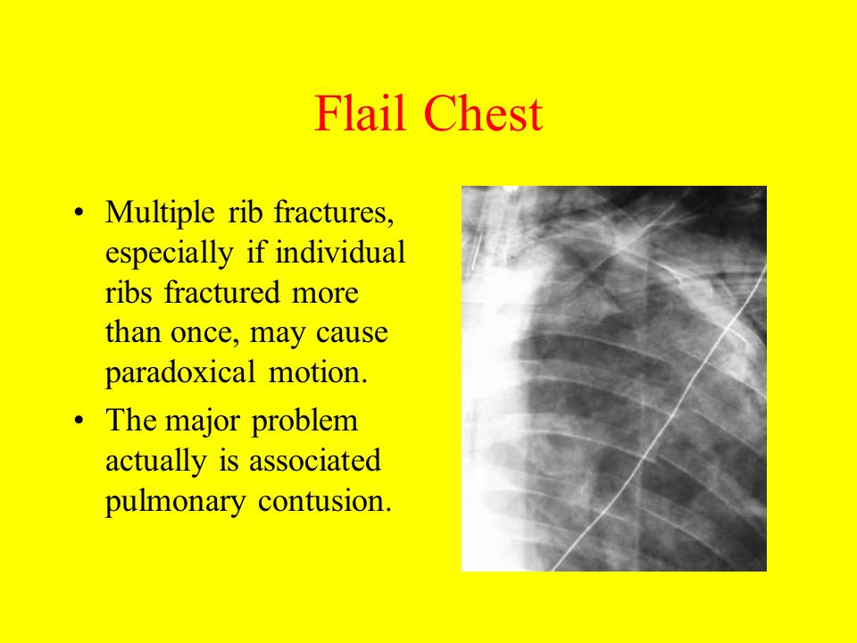 Flail Chest Multiple rib fractures, especially if individual ribs fractured more than once, may cause paradoxical motion.