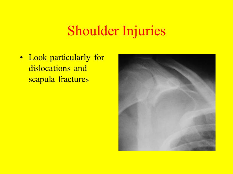 Shoulder Injuries Look particularly for dislocations and scapula fractures