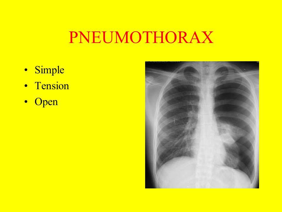 PNEUMOTHORAX Simple Tension Open