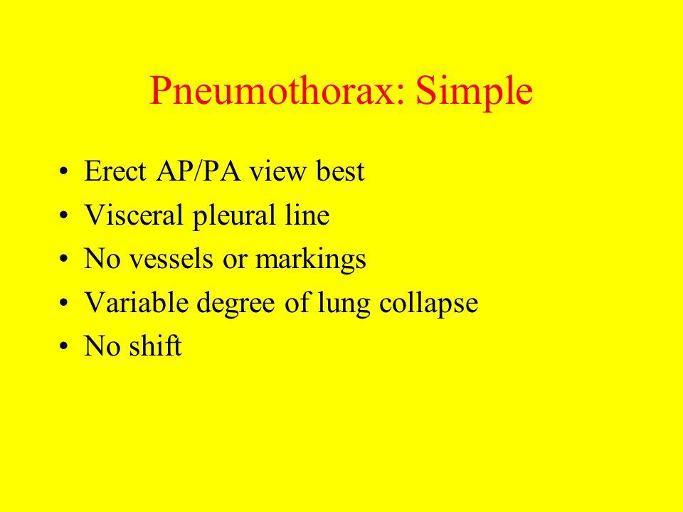 Pneumothorax: Simple Erect AP/PA view best Visceral pleural line