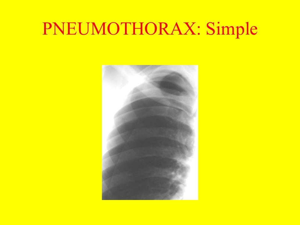 PNEUMOTHORAX: Simple