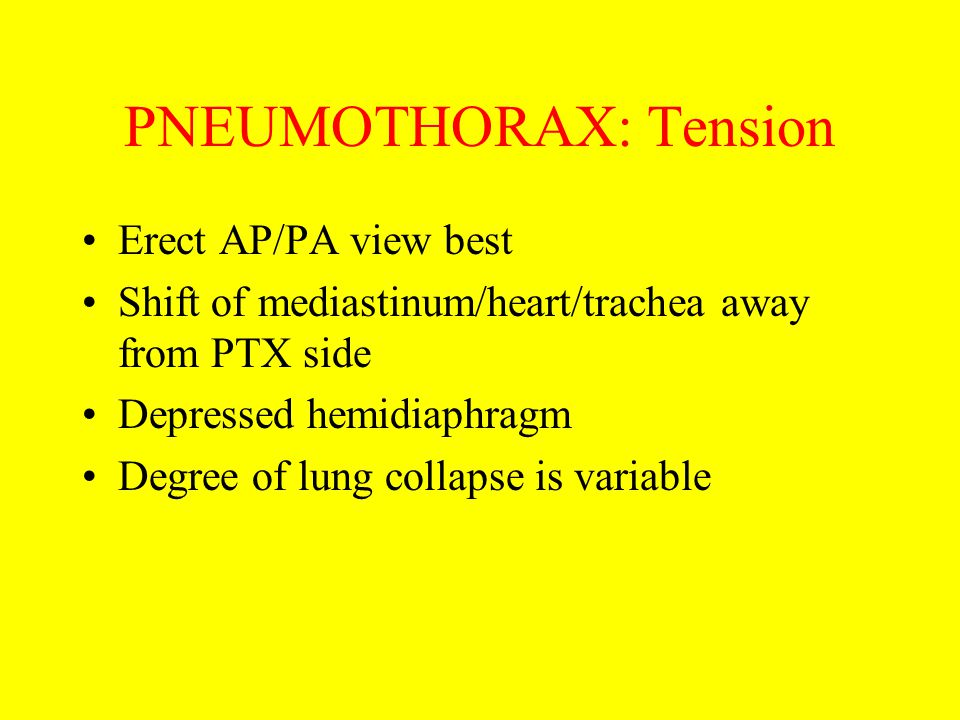 PNEUMOTHORAX: Tension