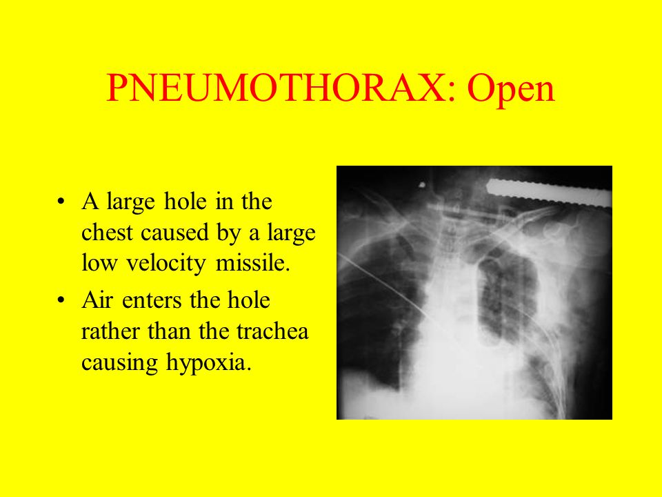 PNEUMOTHORAX: Open A large hole in the chest caused by a large low velocity missile.