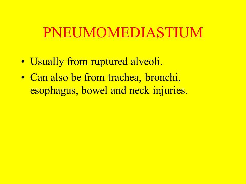PNEUMOMEDIASTIUM Usually from ruptured alveoli.