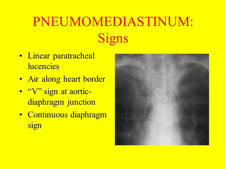 PNEUMOMEDIASTINUM: Signs