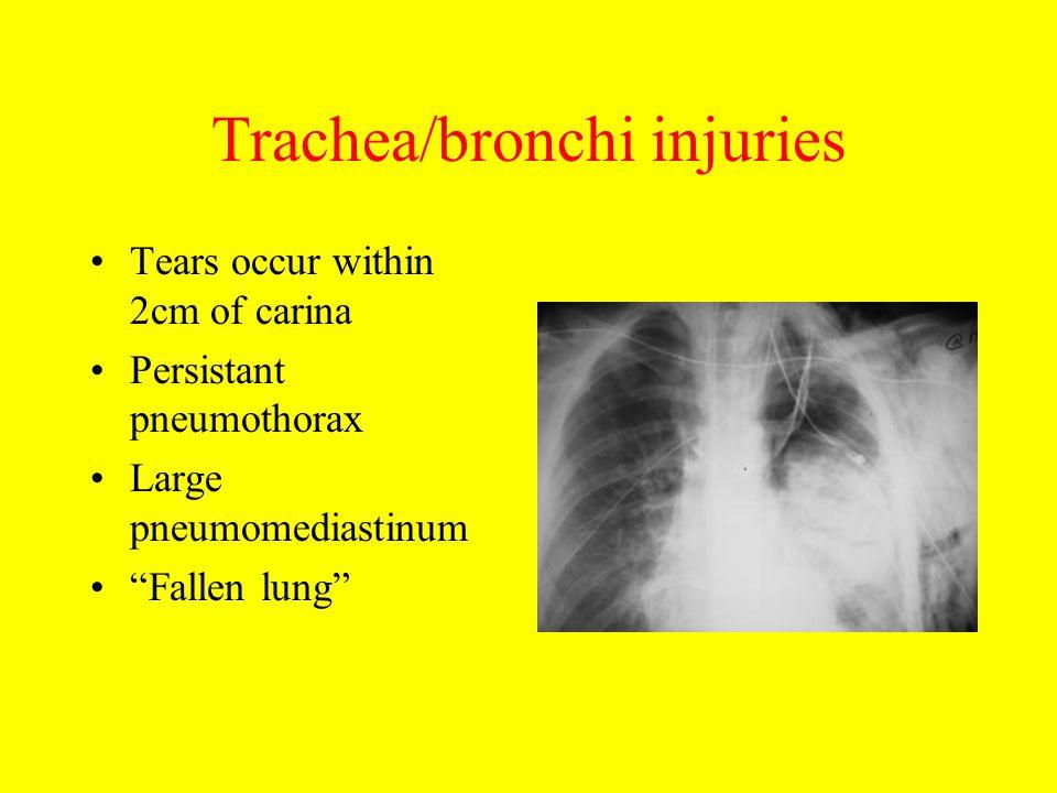 Trachea/bronchi injuries