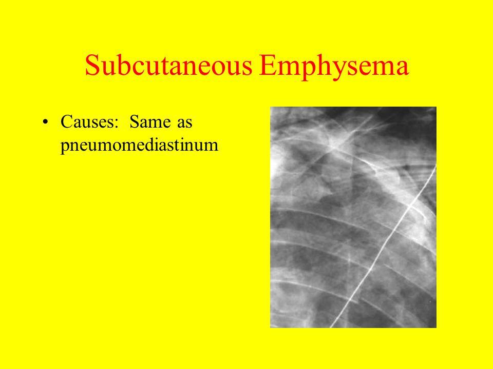 Subcutaneous Emphysema