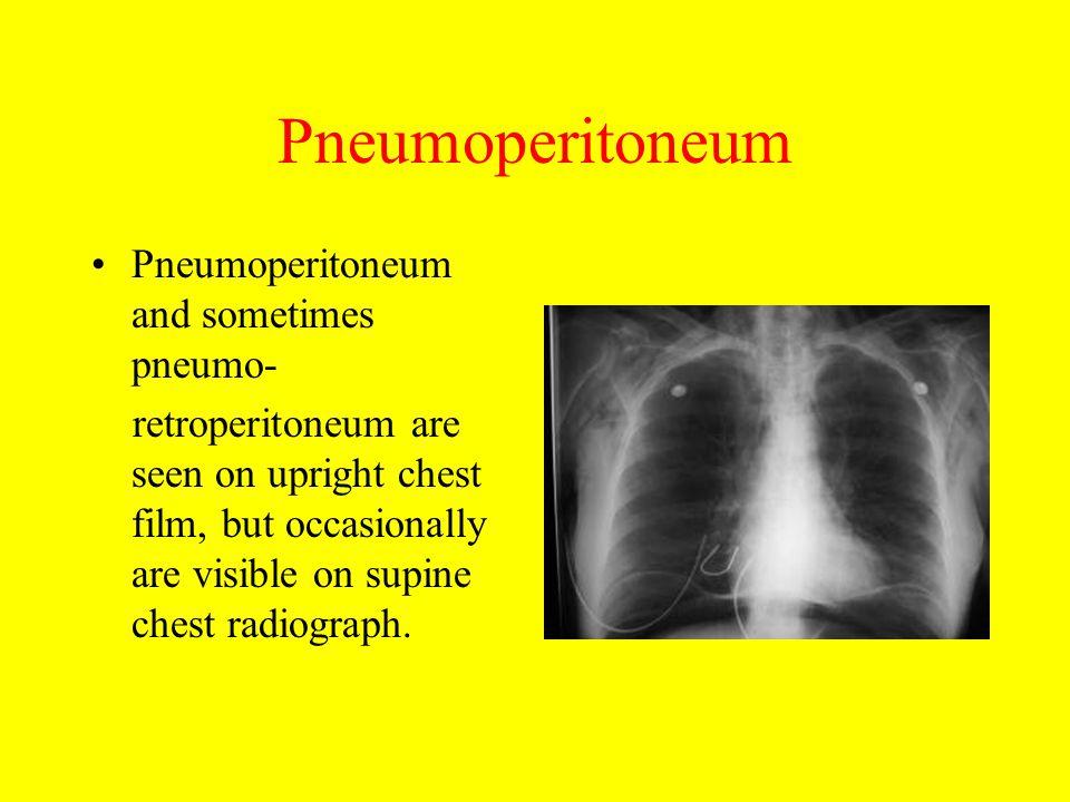 Pneumoperitoneum Pneumoperitoneum and sometimes pneumo-