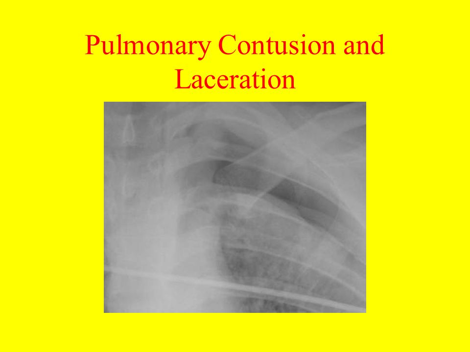 Pulmonary Contusion and Laceration