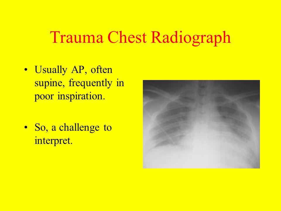 Trauma Chest Radiograph
