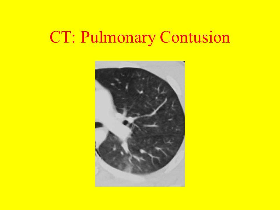 CT: Pulmonary Contusion