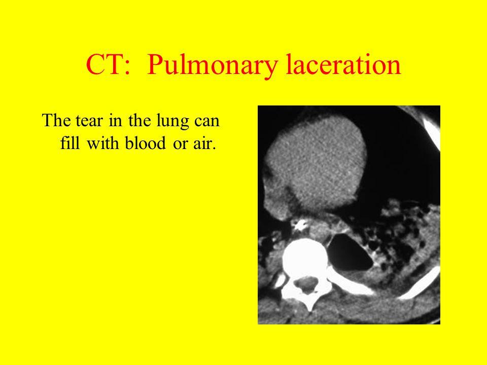 CT: Pulmonary laceration