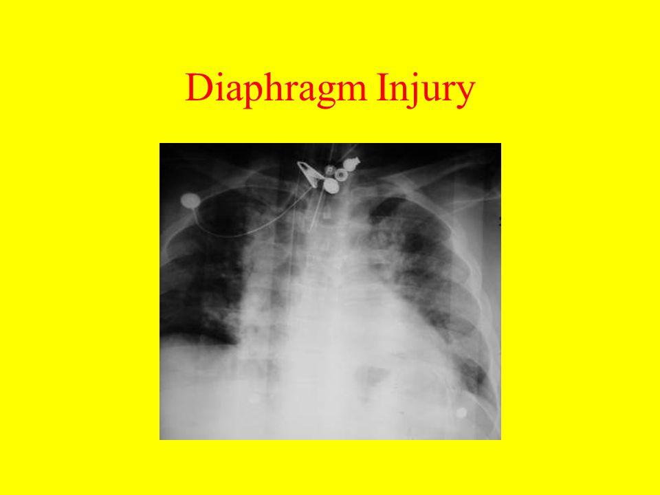 Diaphragm Injury