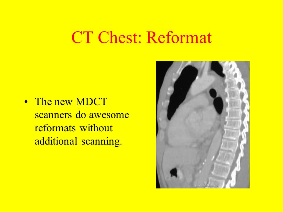 CT Chest: Reformat The new MDCT scanners do awesome reformats without additional scanning.