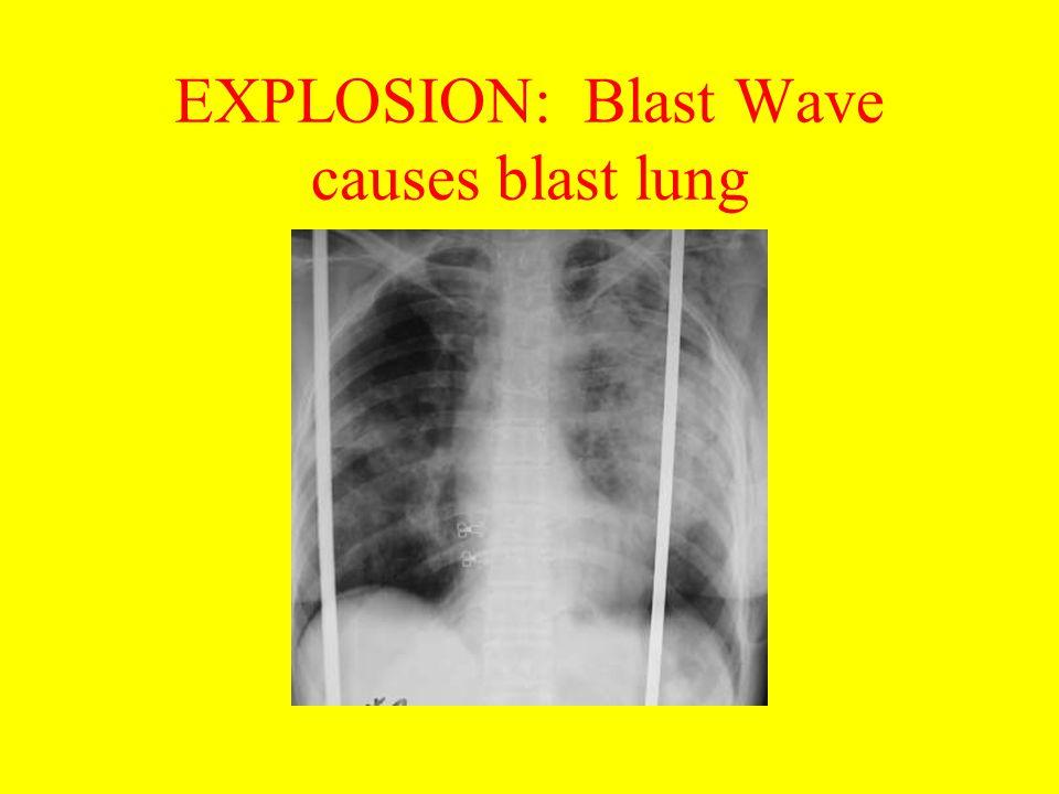 EXPLOSION: Blast Wave causes blast lung