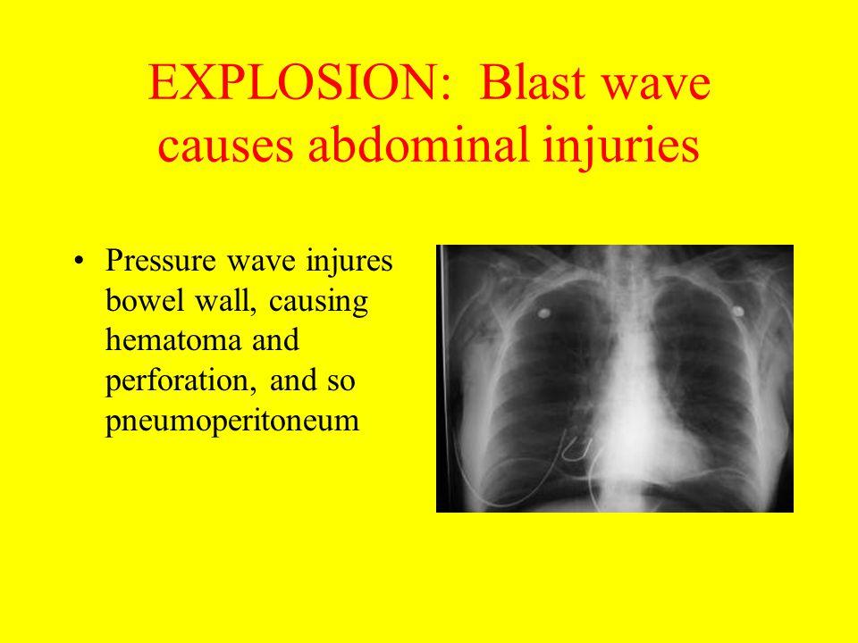 EXPLOSION: Blast wave causes abdominal injuries