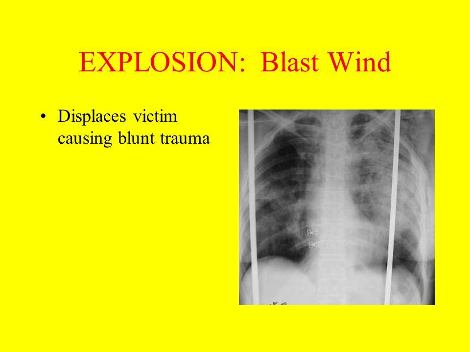 EXPLOSION: Blast Wind Displaces victim causing blunt trauma