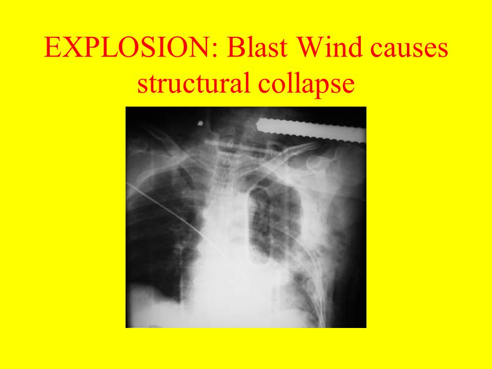 EXPLOSION: Blast Wind causes structural collapse