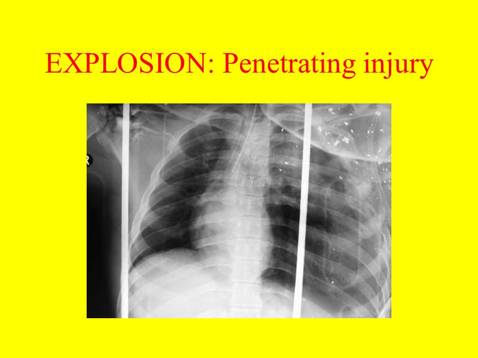 EXPLOSION: Penetrating injury