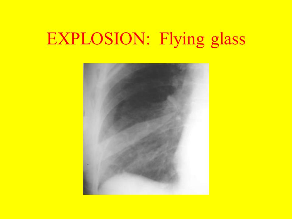 EXPLOSION: Flying glass