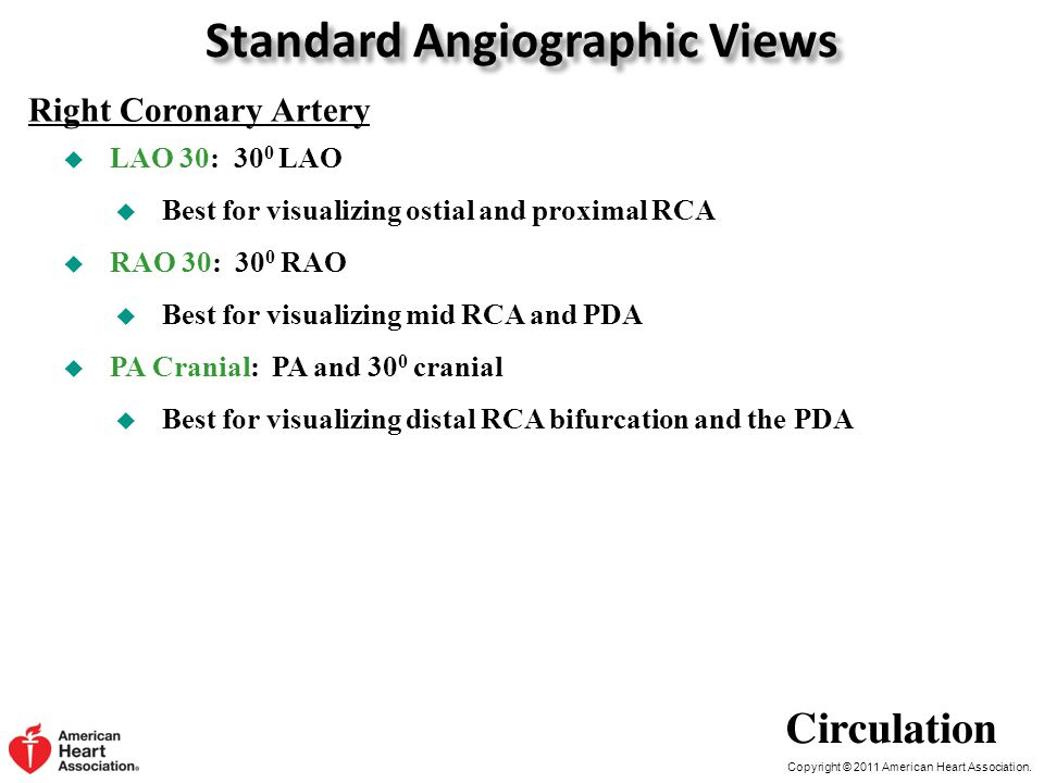 Standard Angiographic Views