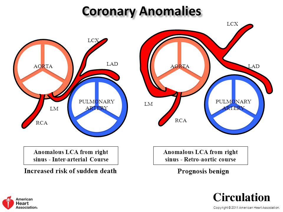 Coronary Anomalies Increased risk of sudden death Prognosis benign