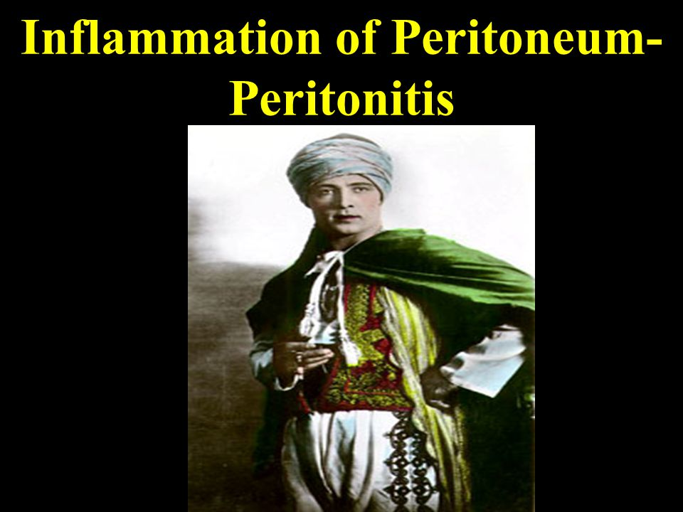 Inflammation of Peritoneum-Peritonitis