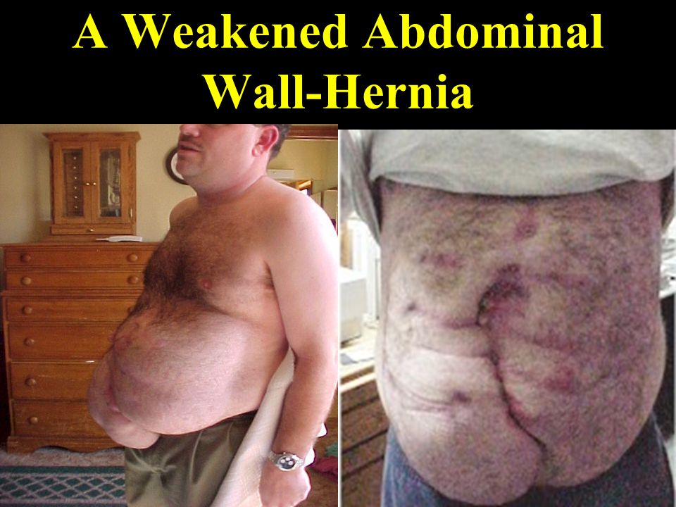 A Weakened Abdominal Wall-Hernia