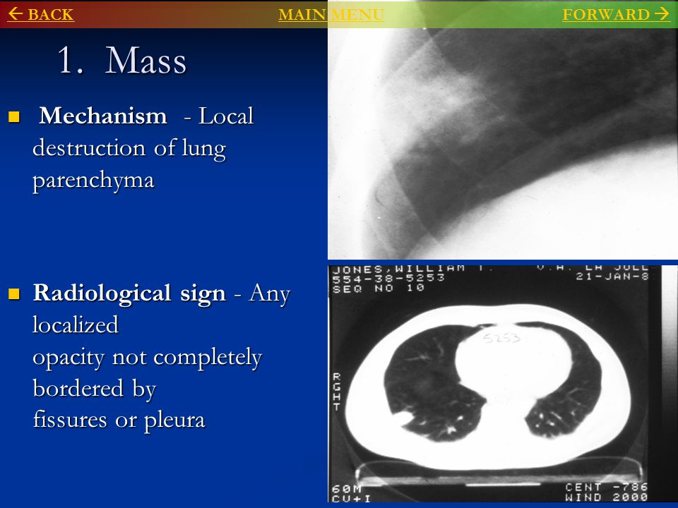 1. Mass Mechanism - Local destruction of lung parenchyma