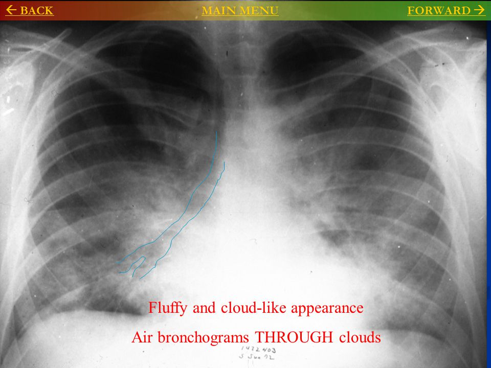 Fluffy and cloud-like appearance Air bronchograms THROUGH clouds