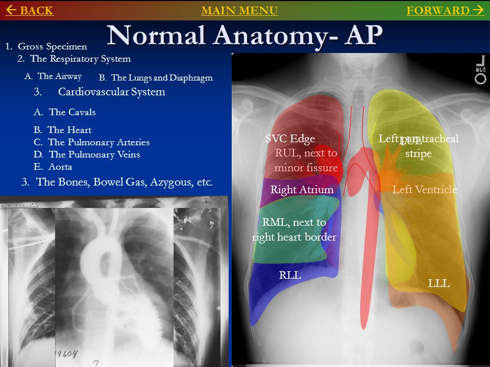 Normal Anatomy- AP  BACK MAIN MENU FORWARD  Cardiovascular System