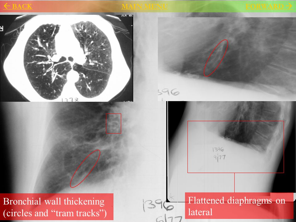Bronchial wall thickening (circles and tram tracks )