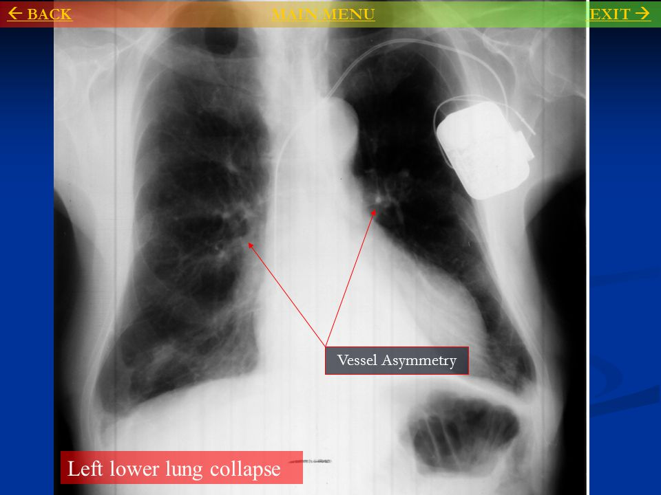 Left lower lung collapse