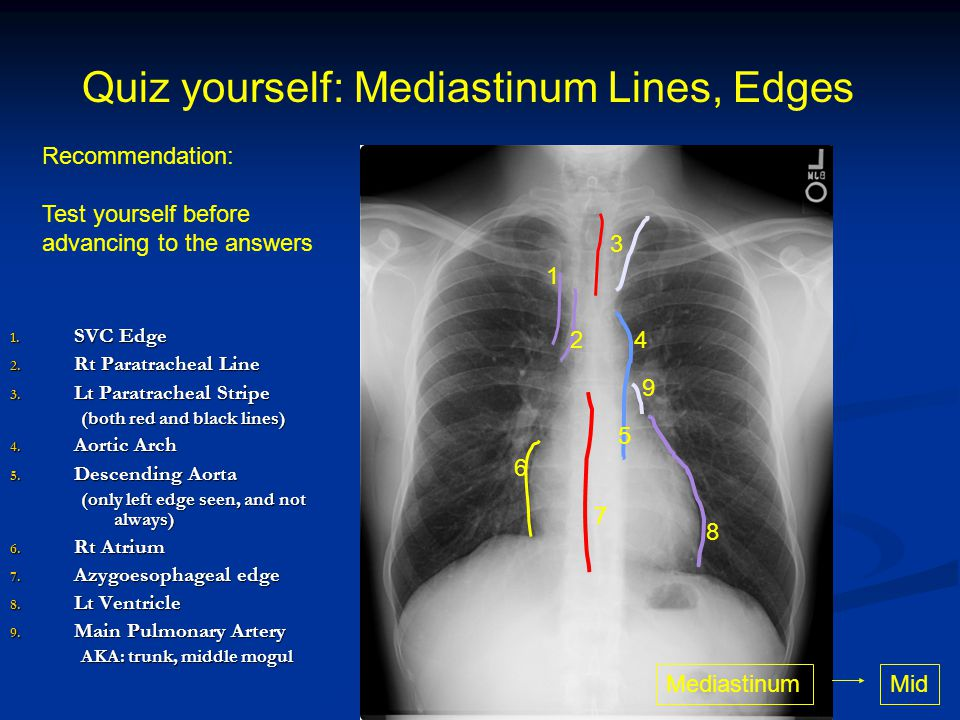 Quiz yourself: Mediastinum Lines, Edges