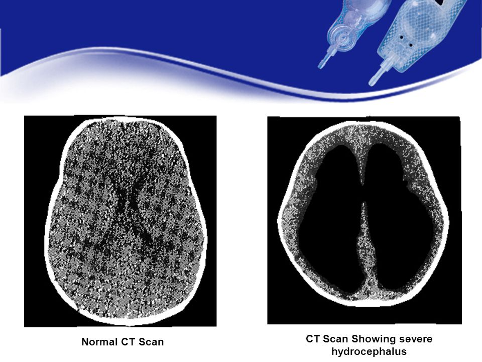 CT Scan Showing severe hydrocephalus Normal CT Scan