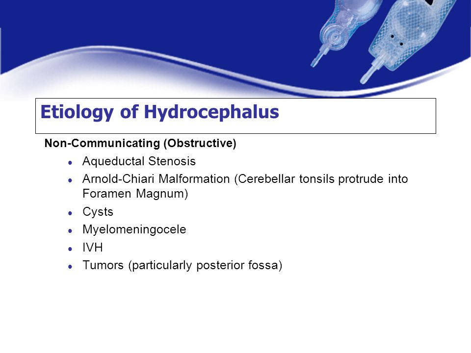 Etiology of Hydrocephalus