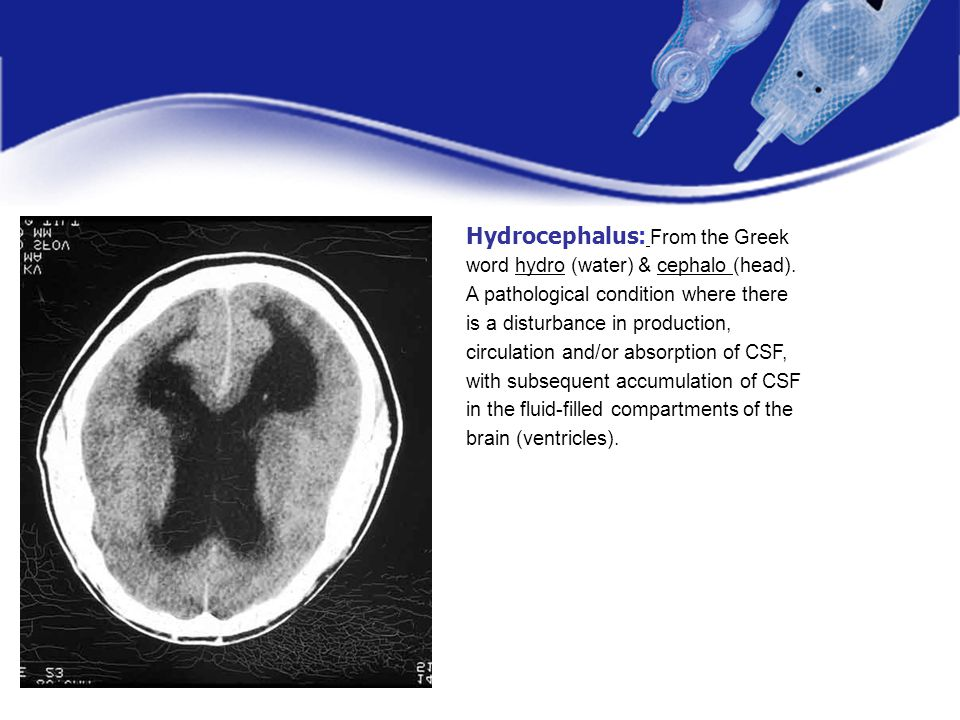 Hydrocephalus: From the Greek