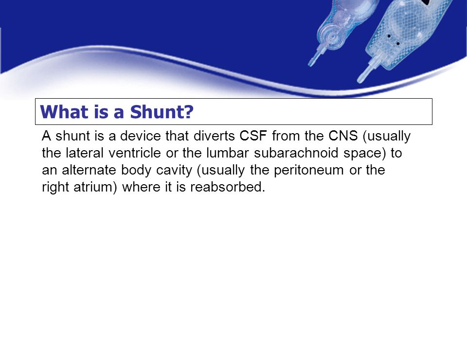 What is a Shunt