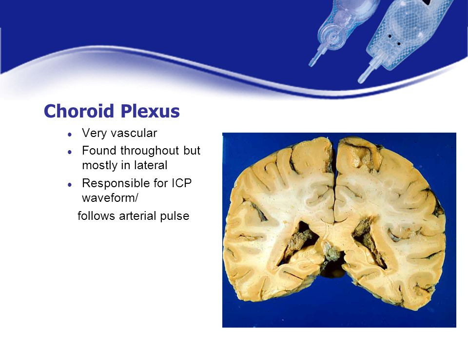 Choroid Plexus Very vascular Found throughout but mostly in lateral