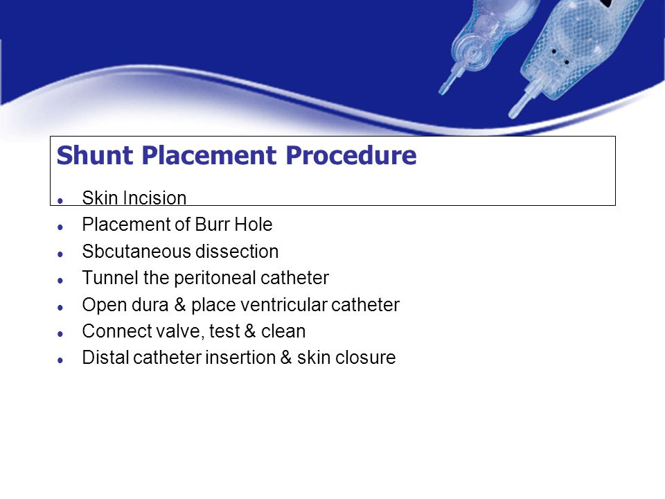 Shunt Placement Procedure