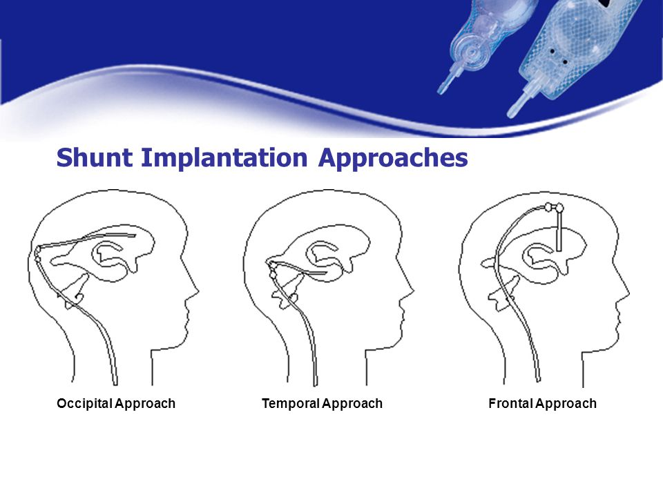 Shunt Implantation Approaches