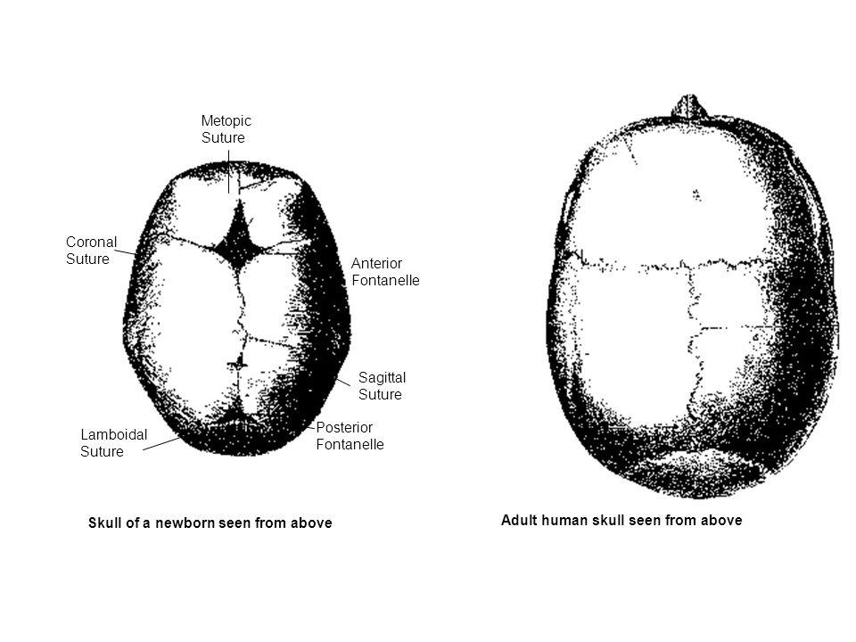 Metopic Suture. Coronal. Suture. Anterior. Fontanelle. Sagittal. Suture. Posterior. Fontanelle.