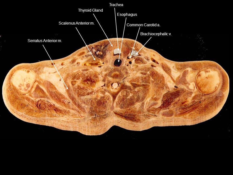 Serratus Anterior m. Scalenus Anterior m. Thyroid Gland.