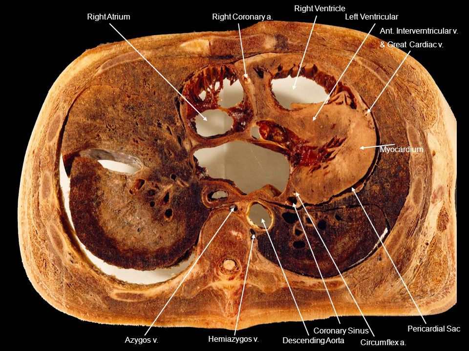 Right Atrium Right Coronary a. Right Ventricle. Left Ventricular. Ant. Interverntricular v. & Great Cardiac v.