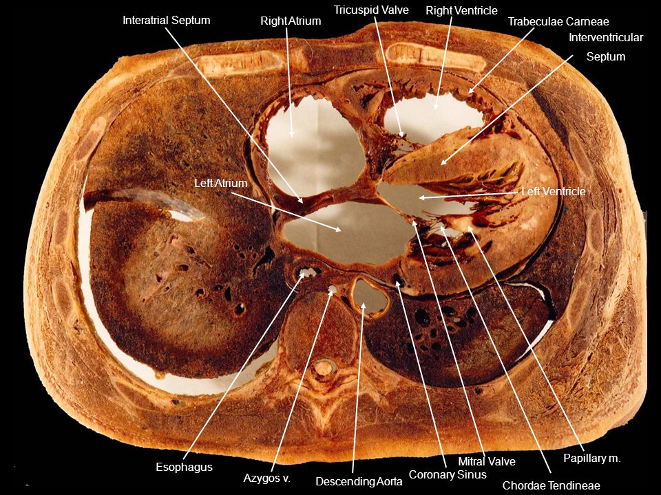 Right Atrium Interatrial Septum. Right Ventricle. Trabeculae Carneae. Interventricular. Septum.