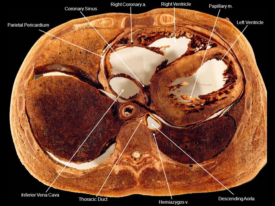 Parietal Pericardium Right Coronary a. Right Ventricle. Left Ventricle. Papillary m. Coronary Sinus.