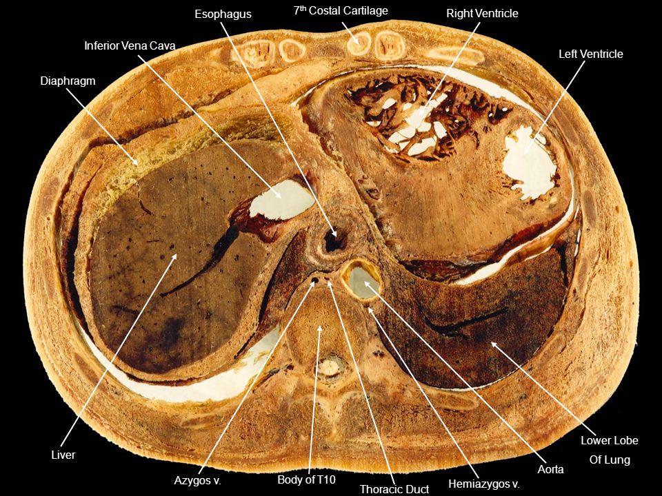 7th Costal Cartilage Right Ventricle. Left Ventricle. Inferior Vena Cava. Esophagus. Diaphragm.