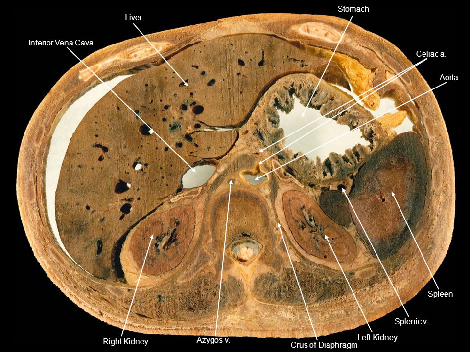 Inferior Vena Cava Liver. Stomach. Celiac a. Spleen. Splenic v. Left Kidney. Crus of Diaphragm.